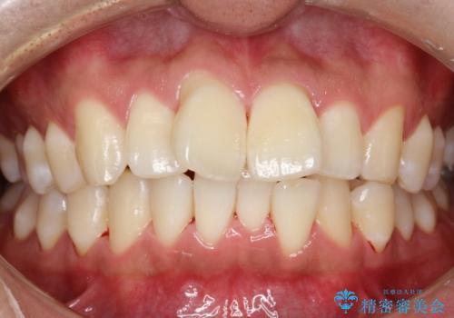 タバコのヤニを取って歯を白くしたいの治療後