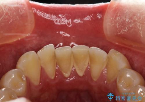 PMTC30分コースで前歯のみクリーニングの治療前
