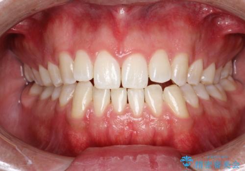 PMTC30分コースで前歯のみクリーニングの治療後