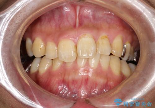 PMTCで歯の着色落としの治療前