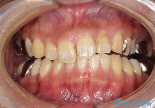 PMTCで歯の着色落としの治療後