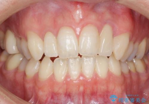 歯の外部吸収 難しい根の治療 30代男性の治療後