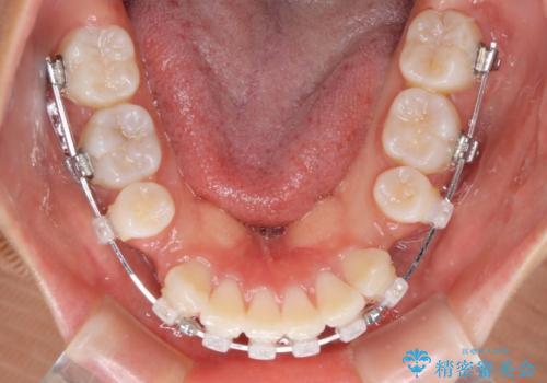 口元の突出感を改善 2年弱での抜歯矯正の治療中