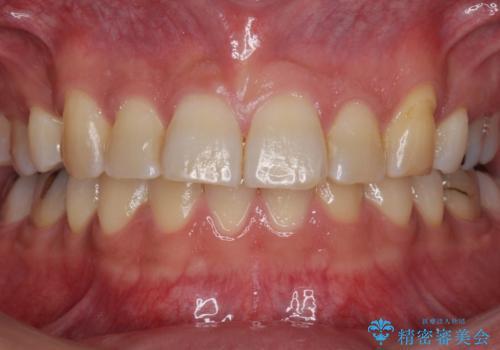前歯だけ治したい インビザライン・ライト 30代男性の症例 治療前