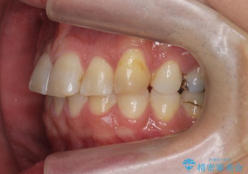 前歯だけ治したい インビザライン・ライト 30代男性の治療前
