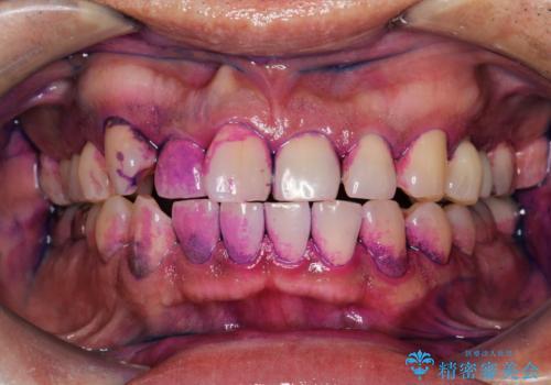 半年ぶりのメンテナンス PMTCでピカピカな歯にの治療前