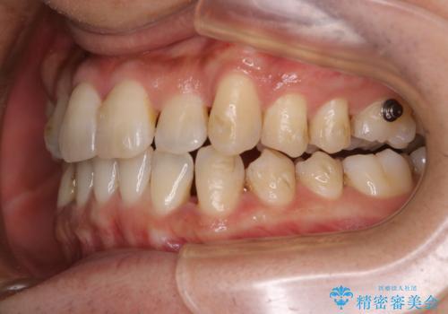 マウスピース矯正の途中にPMTCで白い歯にの治療前