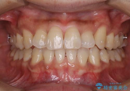 マウスピース矯正の途中にPMTCで白い歯にの治療後