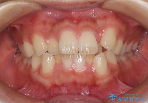 気になる八重歯を治したい 目立たないワイヤーでの抜歯矯正の症例 治療前