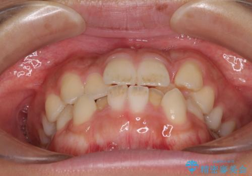 気になる八重歯を治したい 目立たないワイヤーでの抜歯矯正の治療前