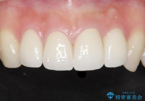 前歯をきれいにしたい 20代女性の症例 治療後