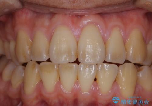 数年ぶりに歯のクリーニングの治療前