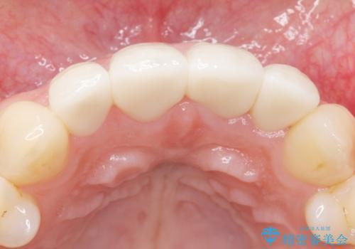 前歯をきれいにしたい 20代女性の治療後