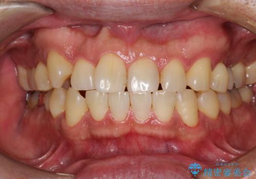 半年ぶりのメンテナンス PMTCでピカピカな歯にの治療後