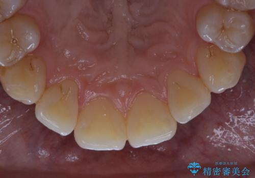 数年ぶりに歯のクリーニングの治療後