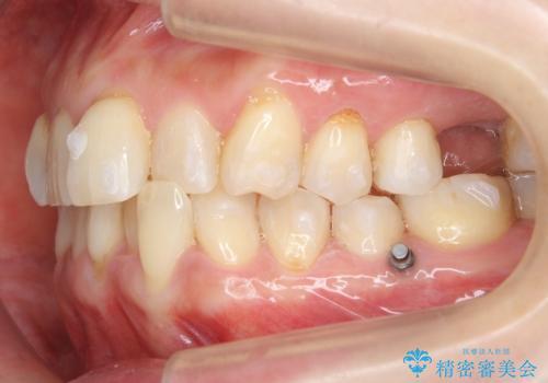 前歯が反対になっている マウスピース矯正+奥歯ブリッジの治療中