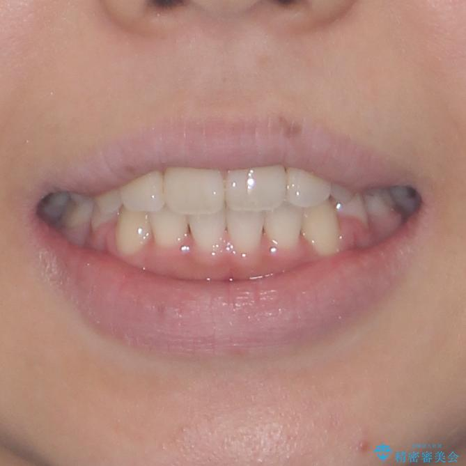 気になる八重歯を治したい 目立たないワイヤーでの抜歯矯正の治療後(顔貌)