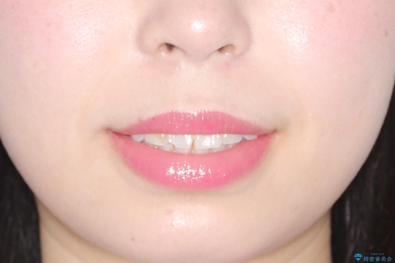 【インビザライン】前歯が出ているのを治したいの治療前(顔貌)