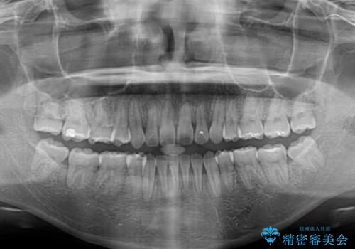 気になる八重歯を治したい 目立たないワイヤーでの抜歯矯正の治療後