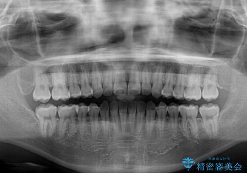 上顎骨拡大を用いたインビザラインによる非抜歯矯正の治療後