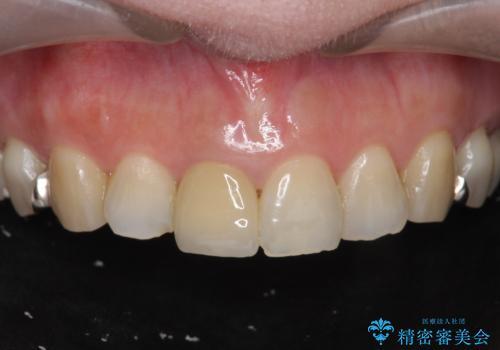 セラミッククラウン 歯ぐきの黒ずみの改善の症例 治療後