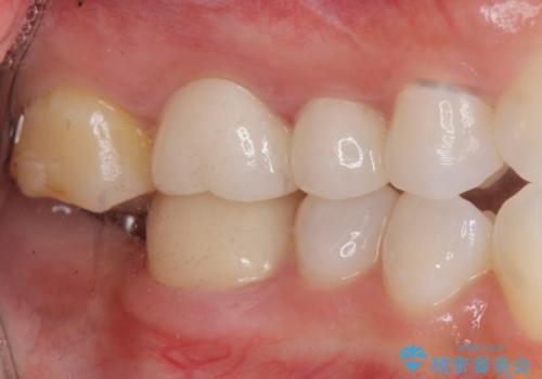 奥歯のインプラント治療の治療前