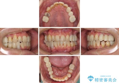 歯並びや奥歯の痛み 色々と治したい 総合歯科診療の治療後