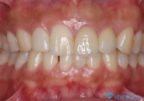 [ 歯が小さい ] 根管治療を伴う矮小歯治療の治療後