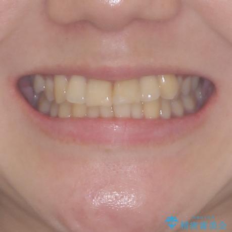 上下前歯のデコボコをきれいに インビザラインによる矯正治療の治療前(顔貌)