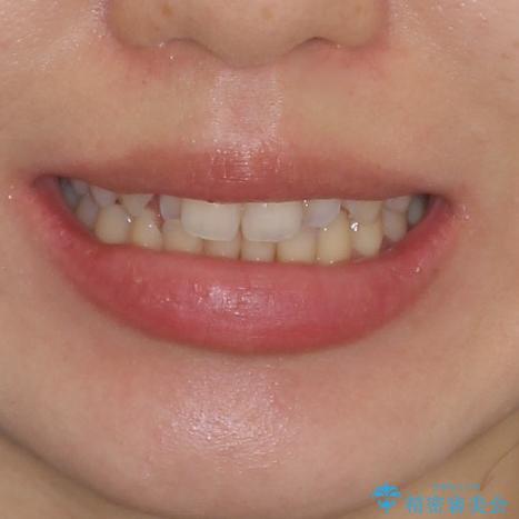できる限り短い期間で終えたい ワイヤー矯正による咬み合わせの改善の治療前(顔貌)