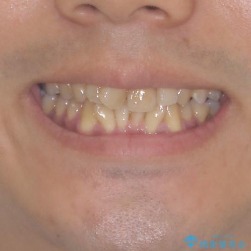 上顎の狭い歯列をインビザラインで拡大の治療前(顔貌)