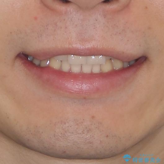 気になる八重歯を抜歯 補助装置を用いたインビザライン矯正の治療前(顔貌)