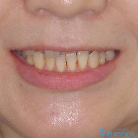 前歯のクロスバイトを治したい インビザラインによる矯正治療の治療前(顔貌)