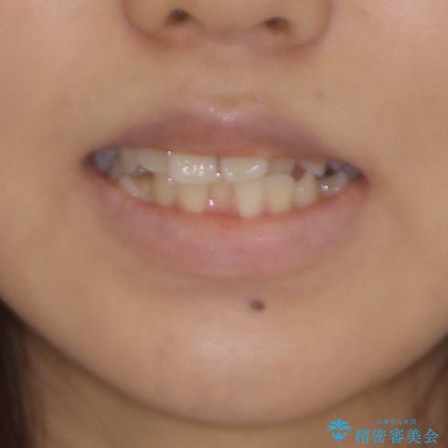 急速拡大装置で狭い歯列を骨格ごと改善 ワイヤー装置による矯正治療の治療前(顔貌)