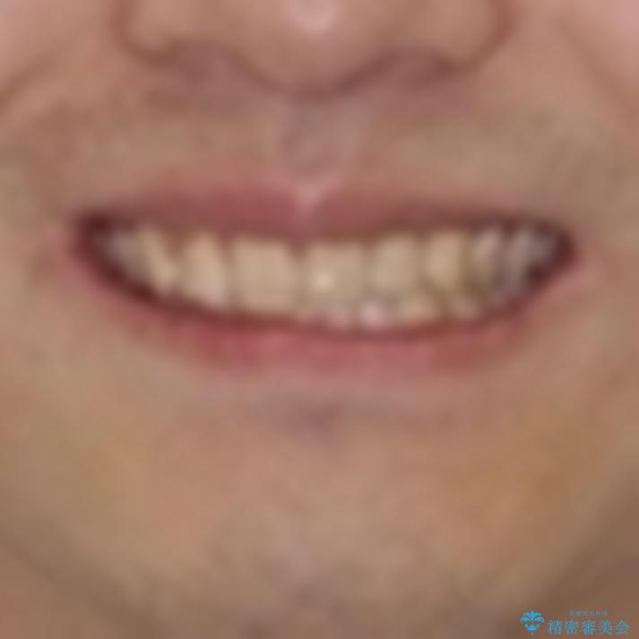 気になる前歯を治したい 短期間でのインビザライン矯正の治療前(顔貌)