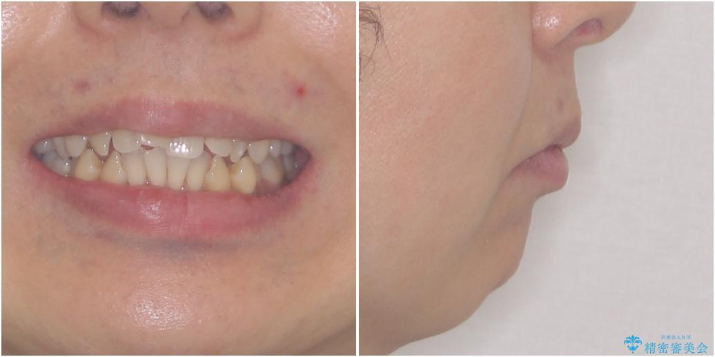 掃除しにくい前歯と閉じにくい口元 目立たないワイヤー装置での抜歯矯正の治療前(顔貌)
