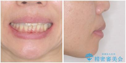 口元の突出感を治したい 治療中の歯も治したいの治療前(顔貌)
