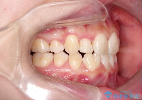 【インビザライン】抜歯矯正の治療後