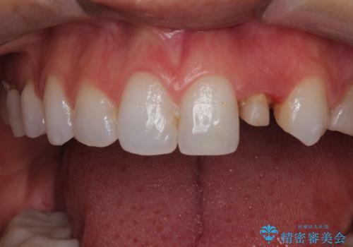 前歯の被せ物をやり替えたい。の治療中
