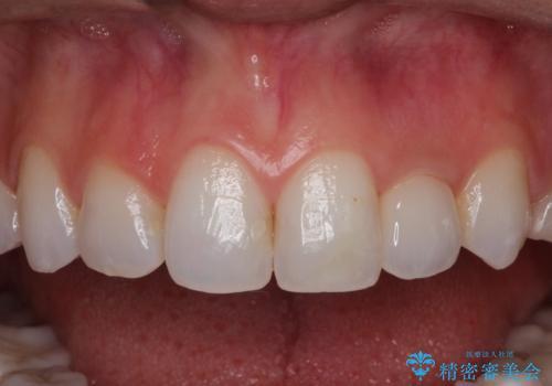 前歯の被せ物をやり替えたい。の治療後
