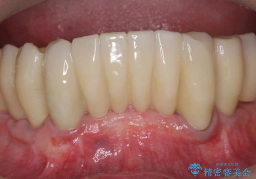「 歯周病 再生治療 」再生治療で歯を残すの治療後