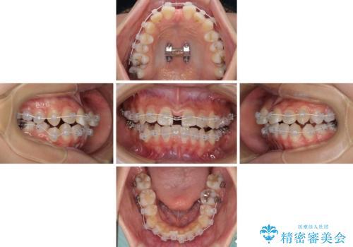 急速拡大装置で狭い歯列を骨格ごと改善 ワイヤー装置による矯正治療の治療中