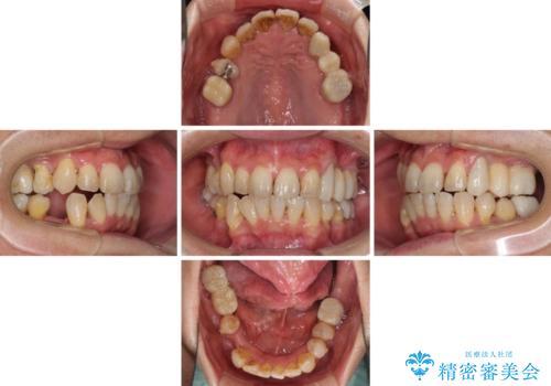 歯並びや奥歯の痛み 色々と治したい 総合歯科診療の治療中