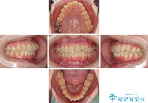 上下前歯のデコボコをきれいに インビザラインによる矯正治療の治療中