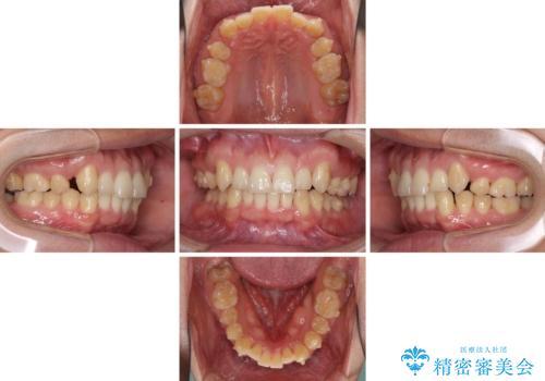 気になる八重歯を抜歯 補助装置を用いたインビザライン矯正の治療中