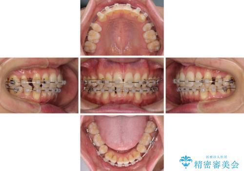 掃除しにくい前歯と閉じにくい口元 目立たないワイヤー装置での抜歯矯正の治療中