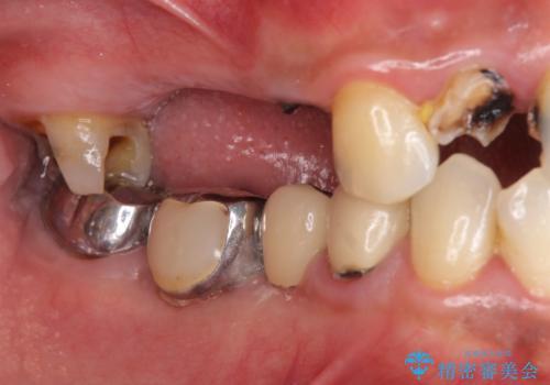 インプラント治療・セラミック治療を含む  全顎的虫歯治療の治療前