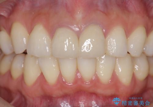 前歯が疼く セラミッククラウンのやり替えの治療後