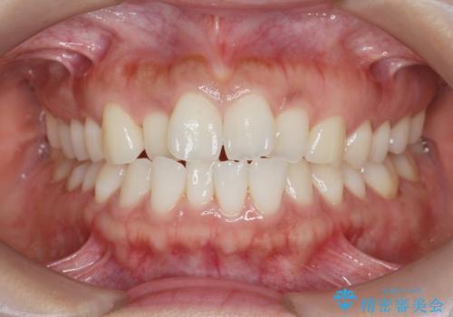 前歯のガタつきを治す マウスピース矯正治療の症例 治療前