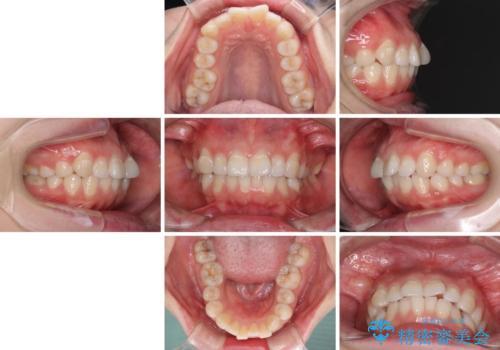 ふっくらとした口元を改善したい 目立たないワイヤー装置による抜歯矯正の治療前